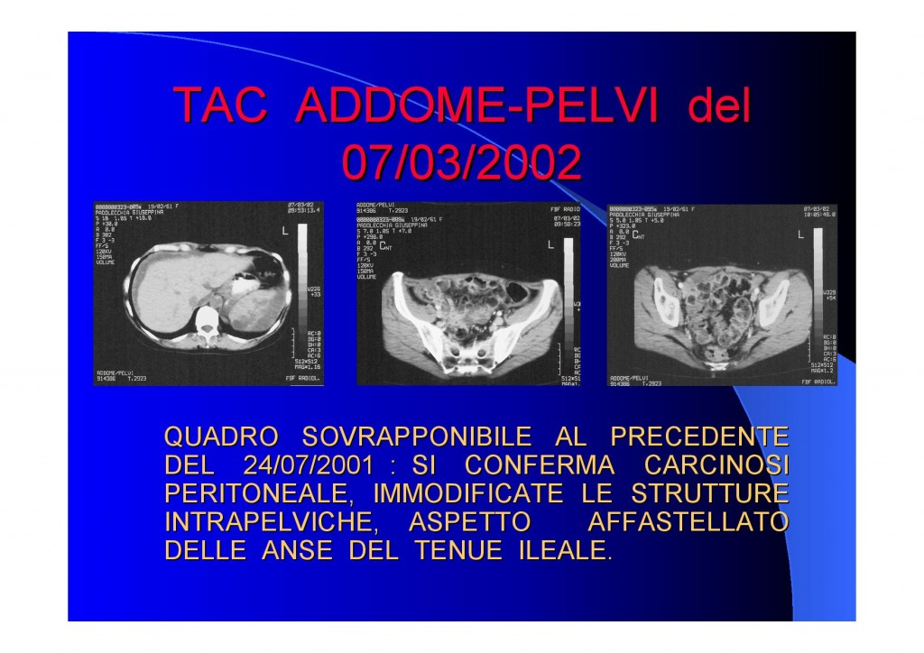 carcinosi-page.jpg