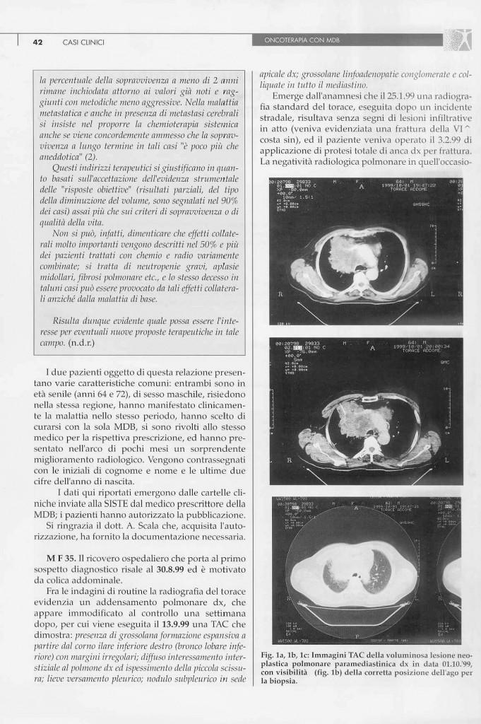 2-casi-carcinoma-polmonare-page-2.jpg