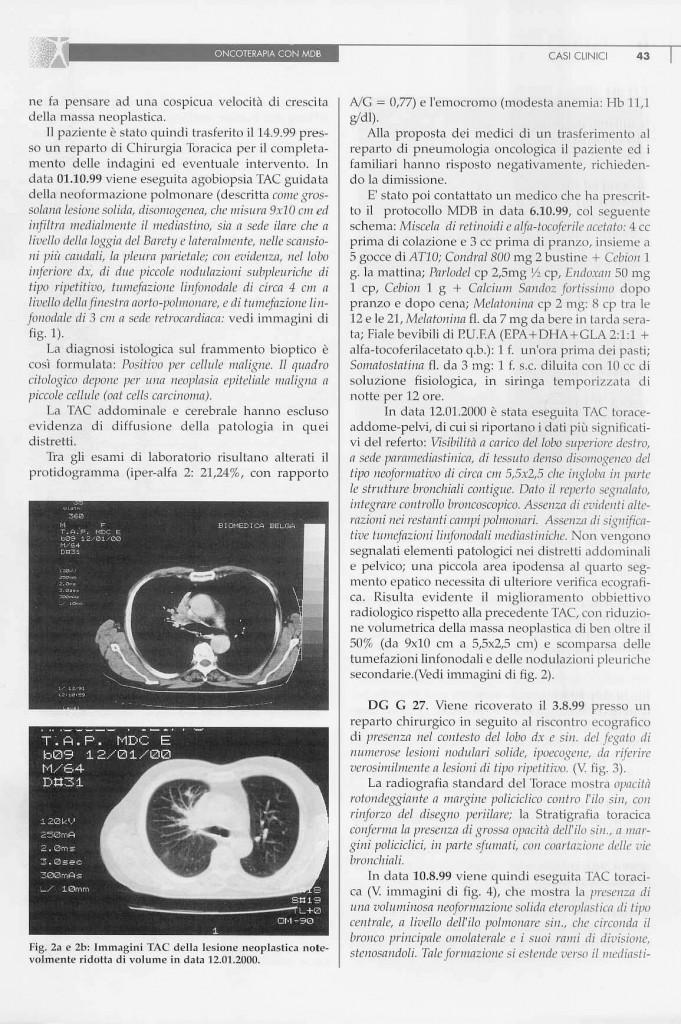 2-casi-carcinoma-polmonare-page-3.jpg