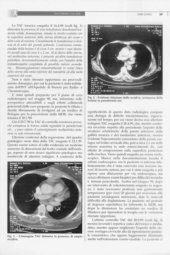carcinoma-mammario-page-1.jpg