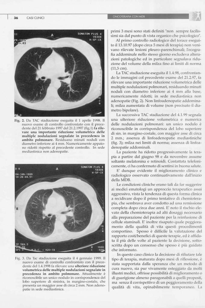 linfoma-non-hodgkin-follicolare-page-2.jpg
