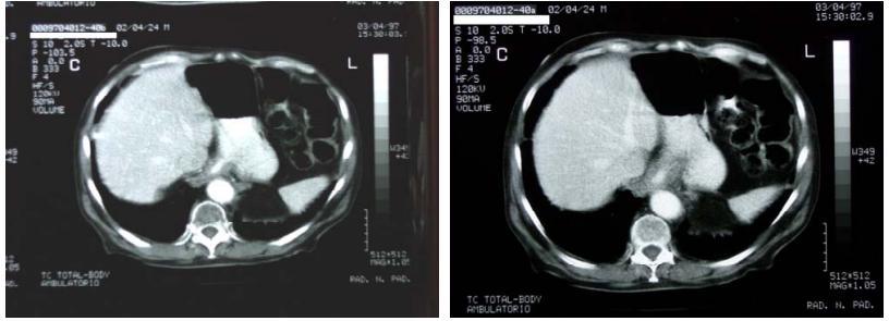 nel-esofago-3.jpg