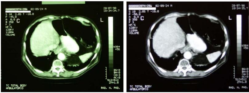 nel-esofago-5.jpg