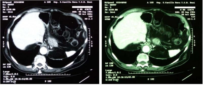 nel-esofago-9.jpg