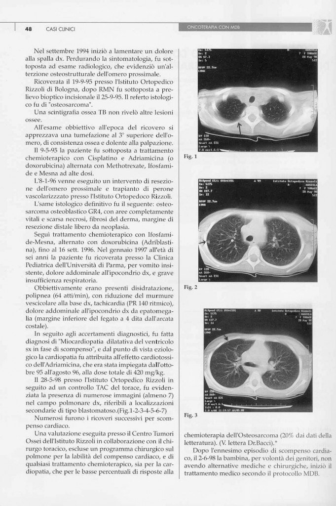 sarcoma-osteogenico-page-1.jpg