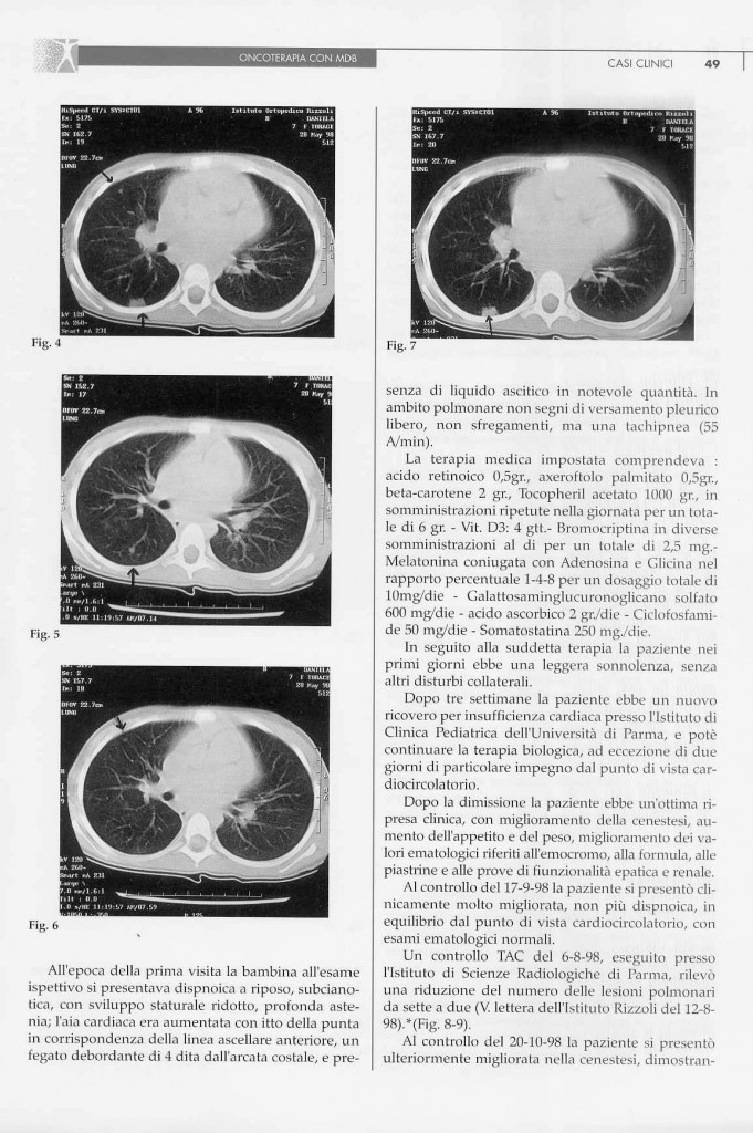 sarcoma-osteogenico-page-2.jpg
