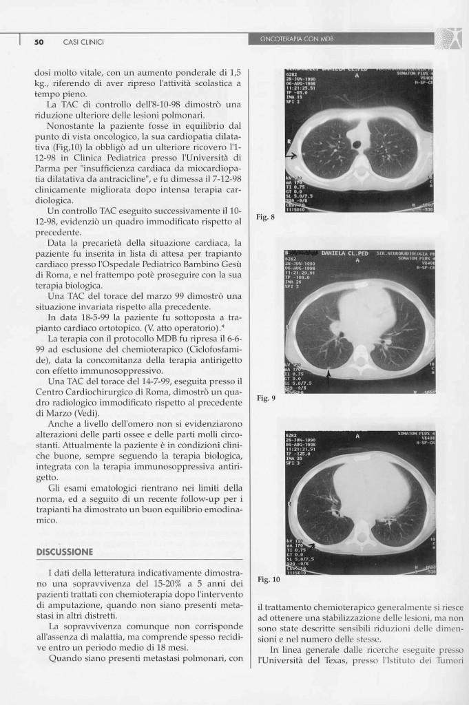 sarcoma-osteogenico-page-3.jpg